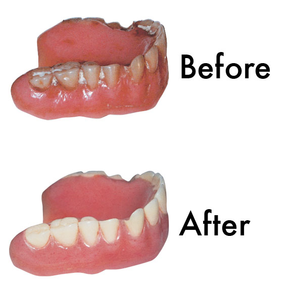 Sparkle Dent Denture Whitener - View 2