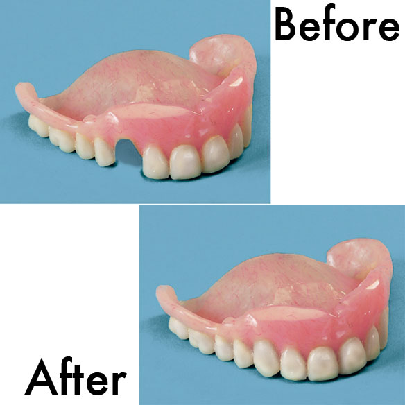 Denture Repair Kit - View 2